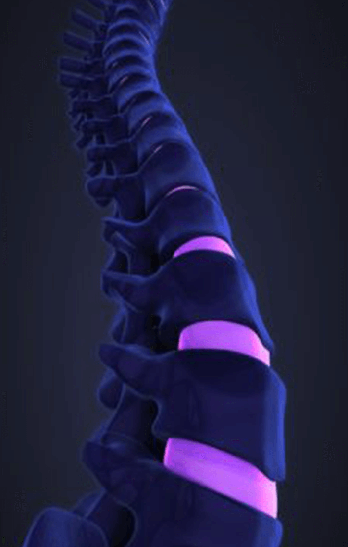 Disc-Herniations